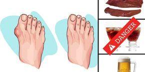 8 aliments à éviter en cas de goutte
