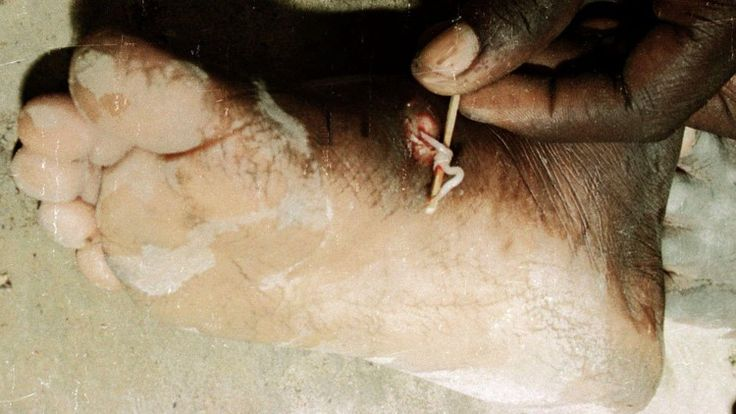 Guinea worm, river blindness and elephantiasis are among the world's neglected tropical diseases. A battle is on to wipe them out