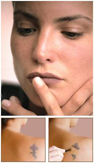 27 best images about The Art of Corrective Makeup on Pinterest ...