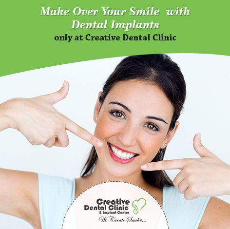 Dental Implants In Pune - Creative Dental Clinic