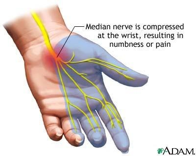 #Acupuncture for carpal tunnel syndromePain Remedies, Chronic Pain, Essential Oil Blends, Carpal Tunnel, Eos Pain, Tunnel Syndrome, Health, Median Nerves, Pain Blends