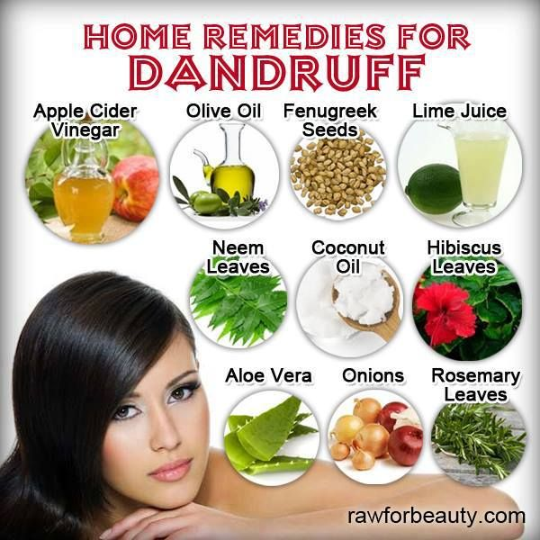 Home remedies for dandruff Follow us @ http://www ...