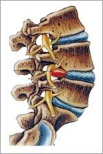 hernia discal. Fuente: http://www.medical-exercise.com/