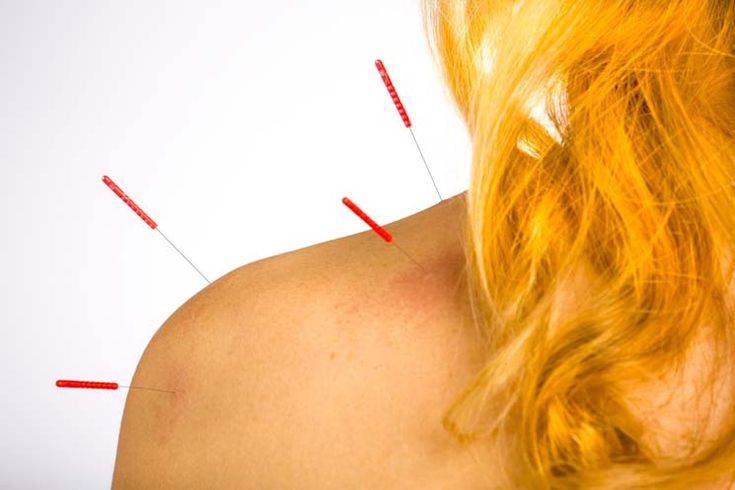 Acupuncture stops neck pain due to spinal nerve impingement.