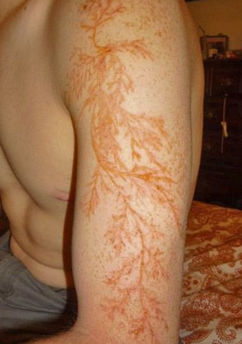 This is what happens to human skin when it's struck by lightning! It's called a Lichtenberg figure - the branching pattern made by electricity as seen on the arm of Winston Kemp who was struck by lightning.