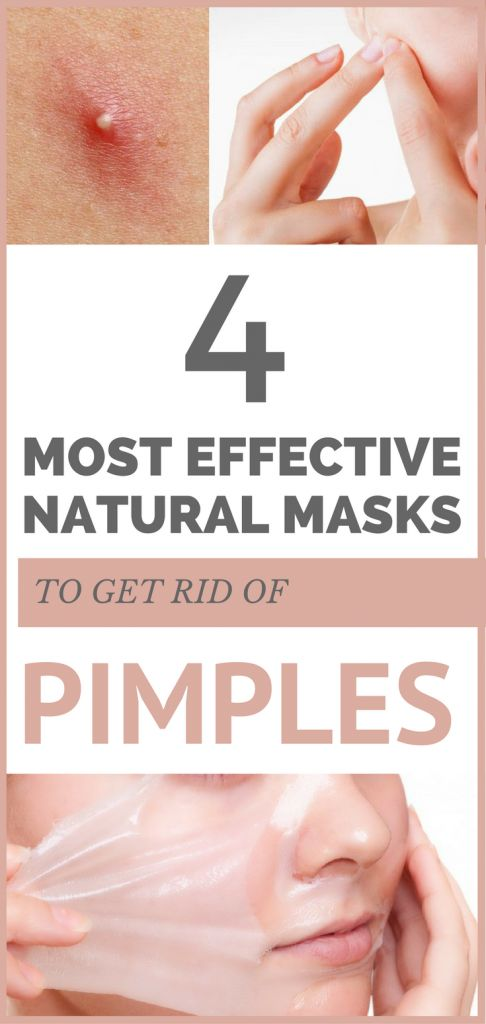 4 most effective natural masks to get rid of pimples.