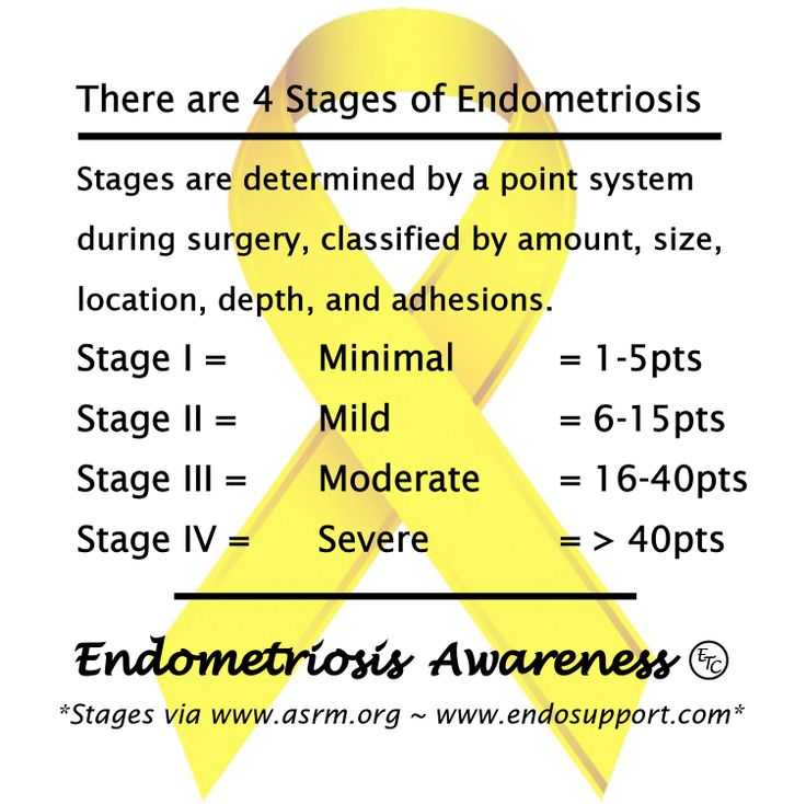 There are 4 Stages of #Endometriosis. Stages are determined by a point system during surgery, classified by amount, size, location, depth, and adhesions. #EndoDidYouKnow #EndoAware #EndoAwareness #EndoAwarenessMonth #EndoTwinCities #PelvicPain #ChronicPain #CureEndo #EndoMarch2014 #MyEndoMarch #EndoSisters #EndoWarriors #FightLikeaGirl #Diagnosis http://www.reproductivefacts.org/Endometriosis_booklet/