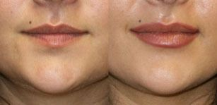 Natural Lip Augmentation surgery in San Diego