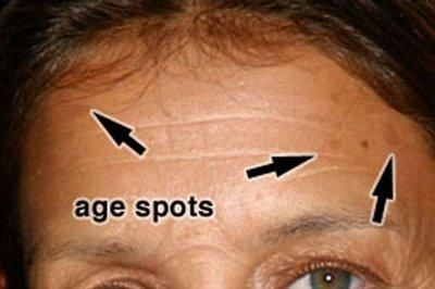 Treatment for facial age spots