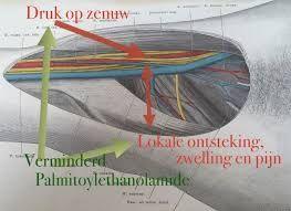 Afbeeldingsresultaat voor mortonse neuralgie laterale zenuw