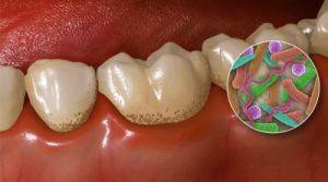 Placche dentali: il preparato che può rimuoverle in meno di una settimana: vediamo gli ingredienti ed il suo utilizzo 30 maggio 2017   Placche dentali: il preparato ?