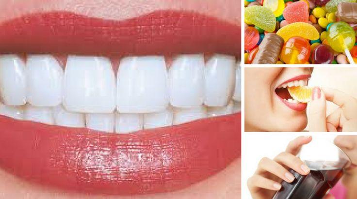 5 Alimentos que Prejudicam os Dentes