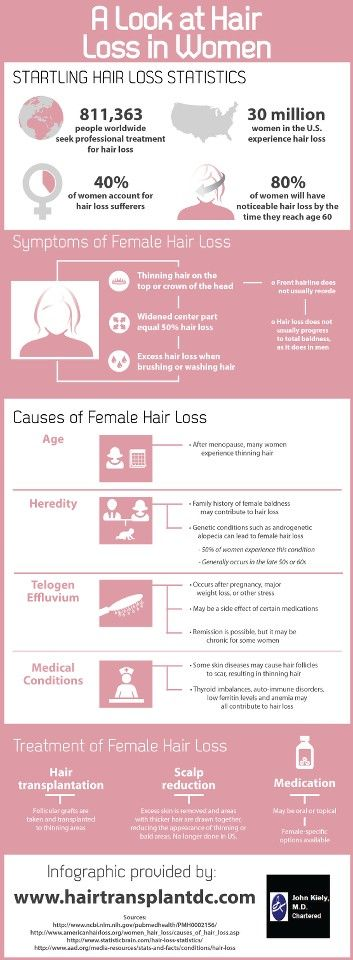 An infographic about women's hair loss. #RestoringBeautifulHair