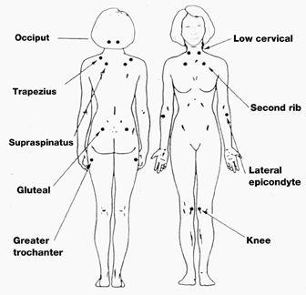 pain points fibromyalgia diagram