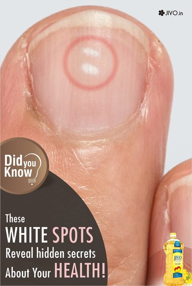 #DidYouKnow These WHITE SPOTS Reveal hidden secrets About Your Health Having white spots on your fingernails or teeth could mean one of many possible health concerns. In this article we will look at the possible causes of white fingernail spots or spots on teeth, and if you need to talk to your medical professional about your symptoms.