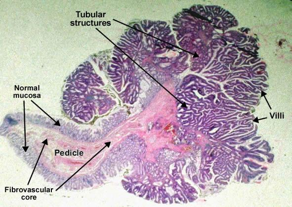 tubulovillous_adenoma_pedunculated_polyp_colon.jpg (591×419)      Adenomatous tubulo-villous polyp, pedunculated (colon). The adenomatous proliferation is characterized by different degrees of cell dysplasia (cellular and architectural atypia) : loss of normal differentiation of epithelium, irregular cells with hyperchromatic nuclei, (pseudo)stratified nuclei, nucleolus, decreased mucosecretion and mitosis.