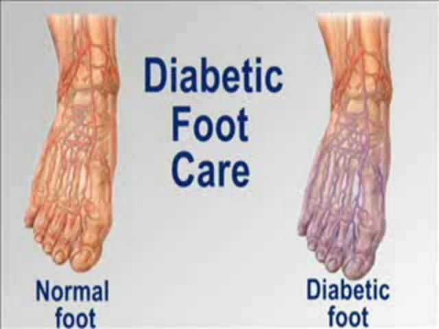 can diabetics smoke weed pictures.of.diabetic.feet=p