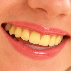 Effective Home Remedies For Yellow Teeth. Don't need it, but maybe it will make my teeth whiter