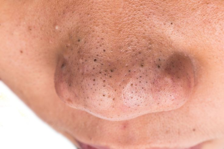 Blackheads - they are awful! But we've come up with some of the best blackhead treatments to help eliminate blackheads without costing a fortune