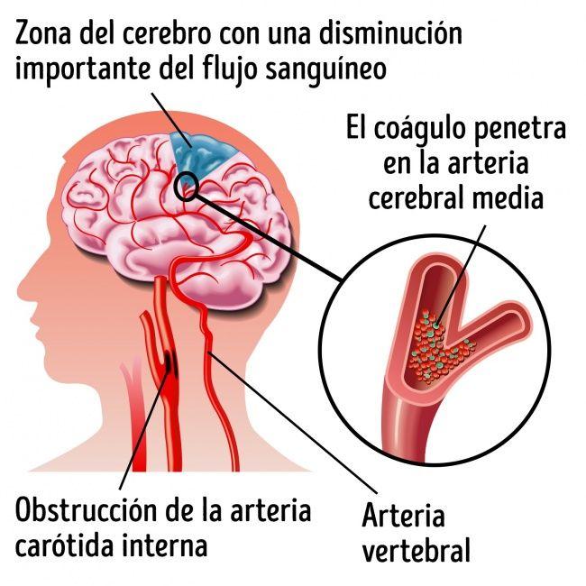 sintomas de demência cerebrovascular