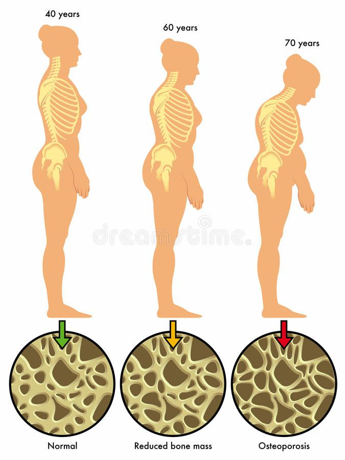 27++ What is osteoporosis in women information
