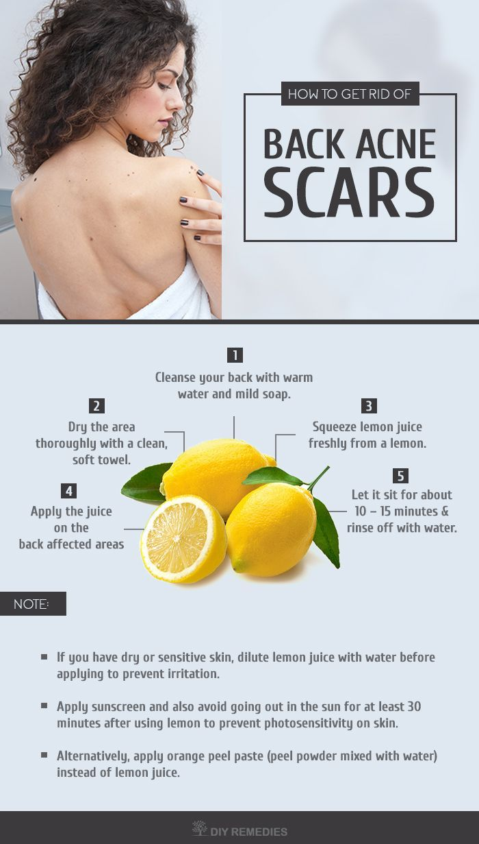 Diy Natural Remedies Of Back Acne Scars