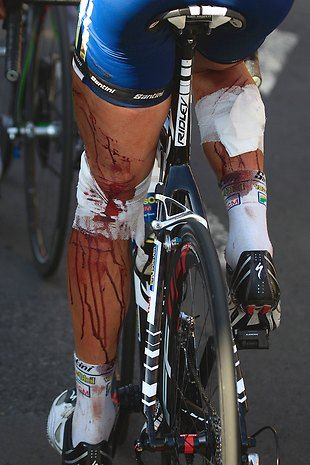 In the 9th stage of the 2011 Tour De France Dutch rider Johnny Hoogerland was in the lead group when he got hit by a car and thrown into a barbed wire fence. But he finished the stage, claimed the polka-dot jersey, got 33 stitches, and rode Stage 10.