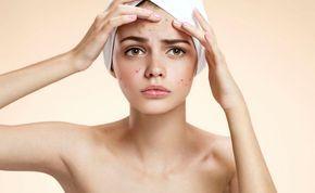 Kosmetikerin und Herumgedrücke kannst du dir ab jetzt sparen! Wir zeigen dir, wie du eine Maske machst, die sämtliche Mitesser einfach aus der Haut zieht!