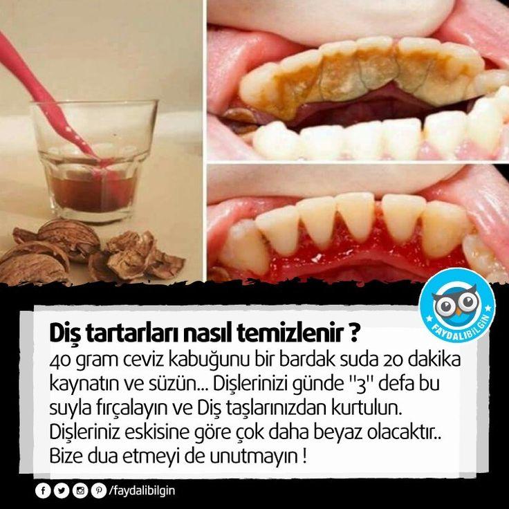 40 gram ceviz kabuğunu bir bardak suda 20 dakika kaynatın ve süzün... Dişlerinizi günde 3 defa bu suyla fırçalayın ve Diş taşlarınızdan kurtulun. Dişl...