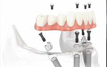Immediate loaded full arch Dental Implants are a clinical reality.  Proper understanding of Implant design, Implant placement, pre prosthetic surgery,  Cone Beam Tomography,  Occlusal Principles,  Surgical Conversion, and Final Restoration will be discussed and shown.  Make All on Four part of your routine for dental challenged patients.