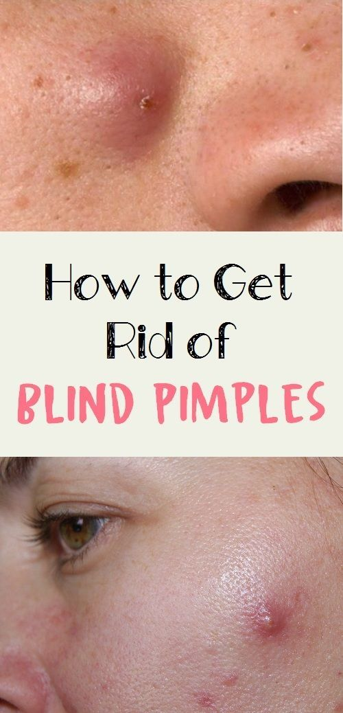 how to treat blind pimples on face