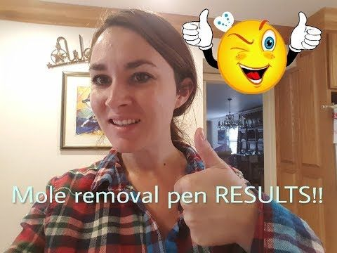 (352) RESULTS of the Skin Spot/Mole Tattoo Removal Pen! 1 week later - YouTube