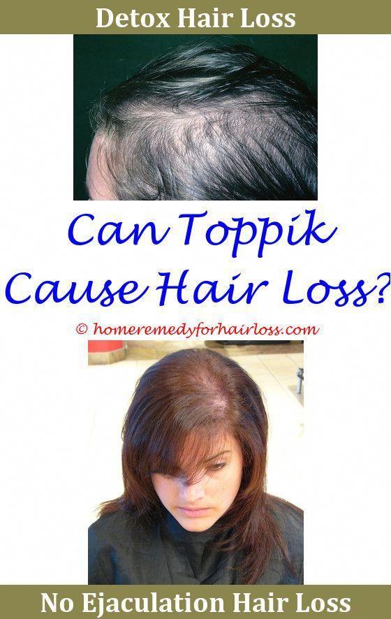 Hair Loss Xeljanz And Hair Loss The Medical Term For Hair Loss Is
