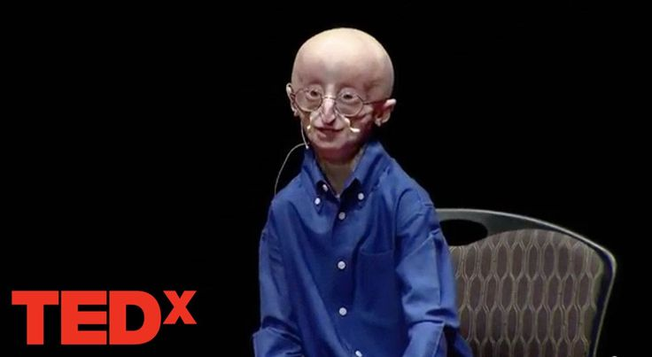 My philosophy for a happy life | Sam Berns | TEDxMidAtlantic (RIP, lovely little Sam. And thanks for sharing!)