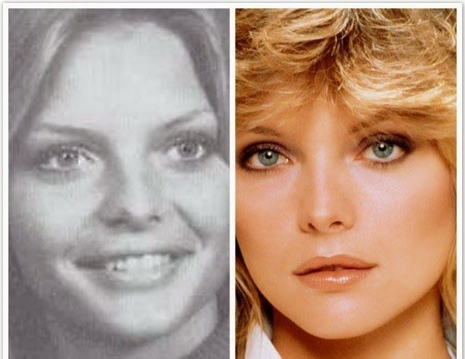 Michelle Pfeiffer Nose Job Is Not New News She Has Just