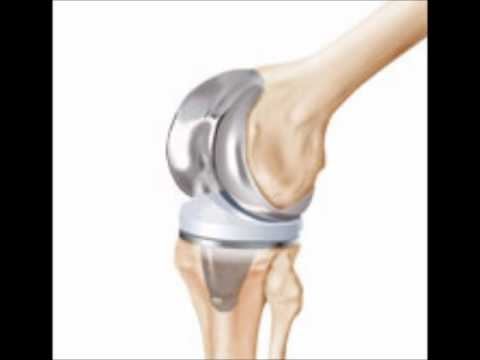 The Zimmer knee implants are used in knee replacement surgeries to give patients relief from problems of knee joints. Zimmer offers a minimally invasive solution through many Zimmer knee components. They have been developed as per requirements for minimally invasive surgery. Zimmer MIS Solutions are designed to facilitate implantation through a smaller incision so that muscles and tendons around the knee are not damaged.