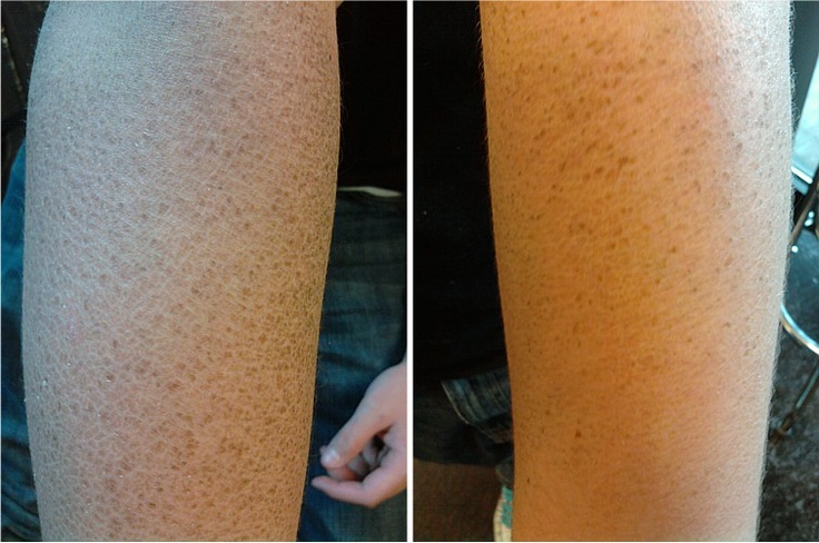 Super Snake For Sale >> Ichthyosis sufferer uses Toe Juice to keep himself from getting snake skin. Arm on the left is ...