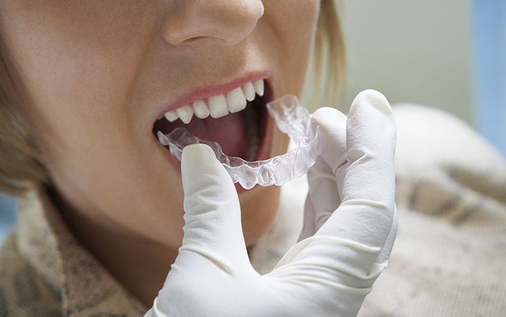 Can a Patient with Restored Teeth Still Go for Orthodontic Treatment?