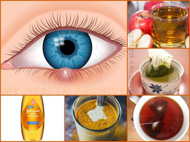 Eye Stye Treatment: Green Tea Bag or Black Tea Bag