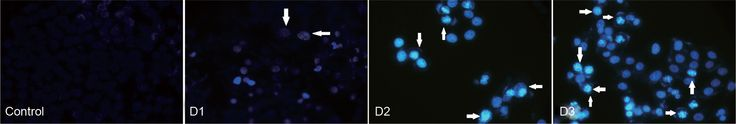 Phytolacca induces apoptosis in melanoma