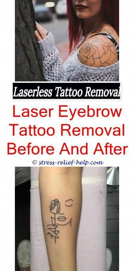 Laser tattoo removal houston.How much tattoo removal cost with laser ...