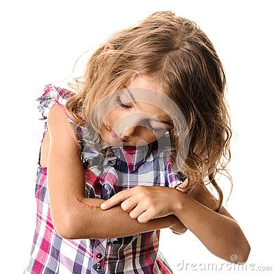 Download Wound Child Arm Scar Stock Photography for free or as low as 0.68 lei. New users enjoy 60% OFF. 22,875,901 high-resolution stock photos and vector illustrations. Image: 34930632