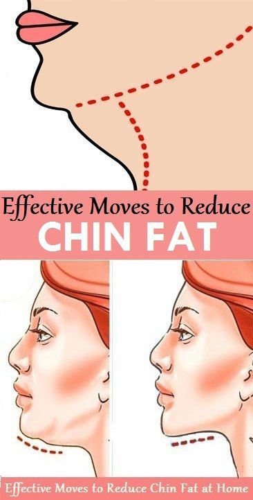 Stretch Your Neck to Sides: Side neck stretches can help get rid of a chin fat by tightening neck muscles from the sides. The exercise is simple and can be done in just 3 to 5 minutes.
