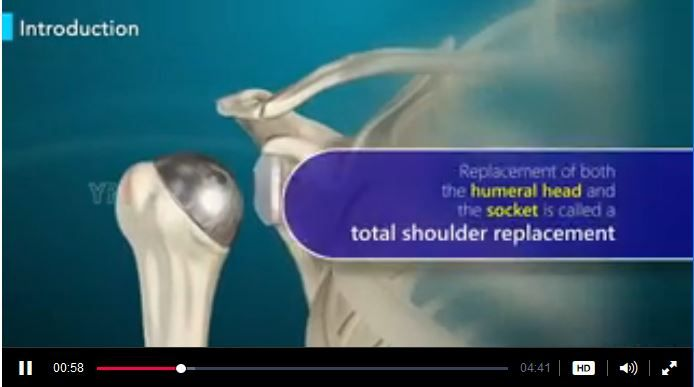For Patient Education - Shoulder Joint Replacement Video in 3D, https://www.ypo.education/orthopaedics/shoulders/shoulder-joint-replacement-t185/video/