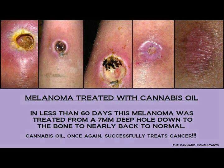 Cannabis oil ♥