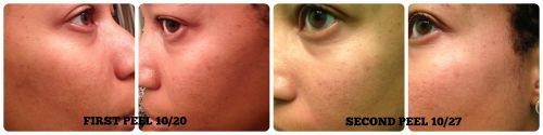 MUAC Products - At Home Chemical Peel Results