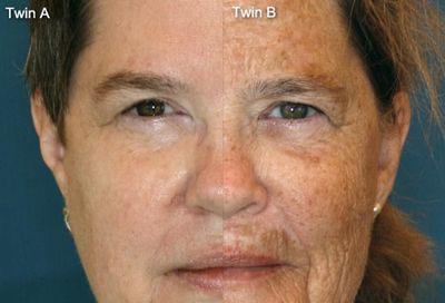 Um Guia Completo para Tratamento de sua Pele ~ learn about natural melasma treatemnt here http://meladermpigmentreducingcomplex.org/melasma-natural-treatment/