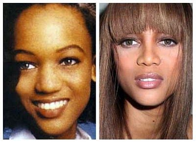 Tyra Banks Plastic Surgery Before And After - http://www.celeb-surgery.com/tyra-banks-plastic-surgery-before-and-after/?Pinterest
