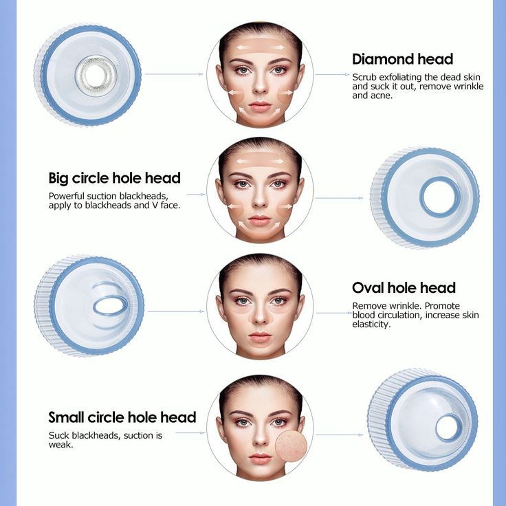 Only US$30.77, Electronic Facial Pore Cleaner Nose Blackhead Cleansing Acne - Tomtop.com