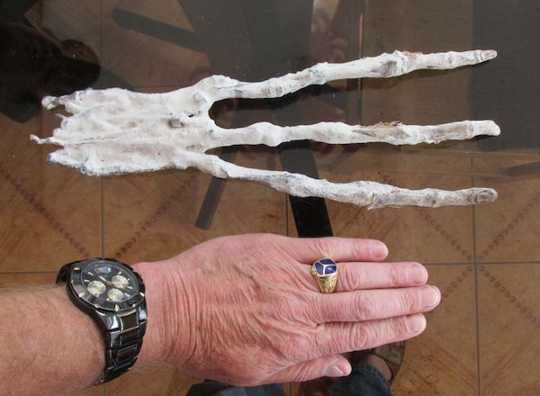 This alien hand seems impossible, but X-rays confirm that real bones are below the skin. Humans have three bones in each finger area, yet this has 6 bones, so we know its not human. DNA results